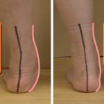 新生児のダウン症は足に特徴が出る