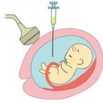 出産前に行うべきダウン症検査 費用や内容は?
